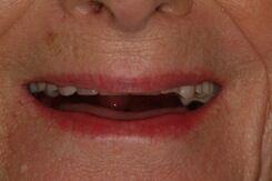 denture - before