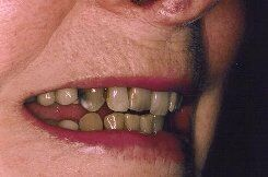 older teeth   before smile
